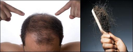 chute-cheveux-age